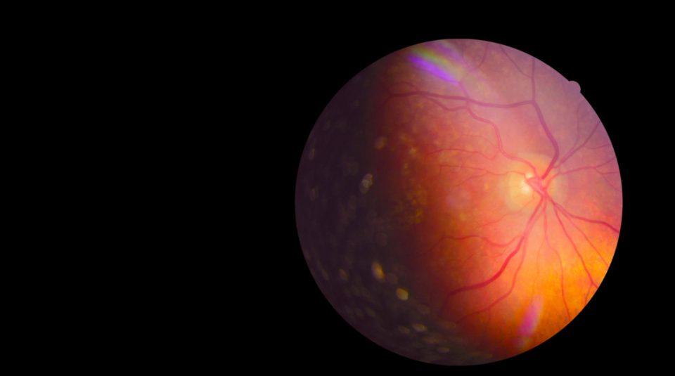 Atlas de Glaucoma